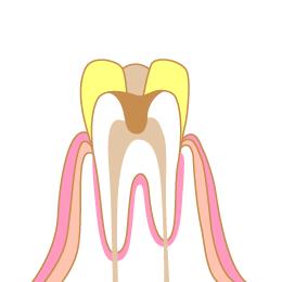 痛く 歯 寝れ ない て 薬効 かない が 寝れないくらい歯が痛いのですが、歯医者さんにいけません。