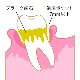 感じ 歯 が 浮く
